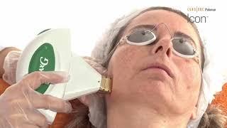 Eliminación de lesiones vasculares y pigmentadas con Plataforma Icon - Vídeo cedido por Cynosure