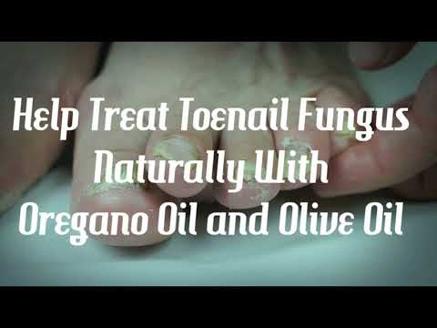 Are Oregano Oil and Olive Oil Effective Against Toenail Fungus?
