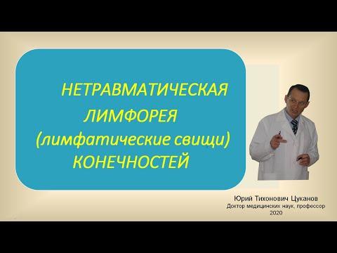 Нетравматическая лимфорея (лимфатические свищи) конечностей. Лекция для врачей.