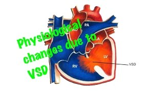 Medical Video Lecture: Physiological Changes Due To Ventricular Septal Defect ( VSD)