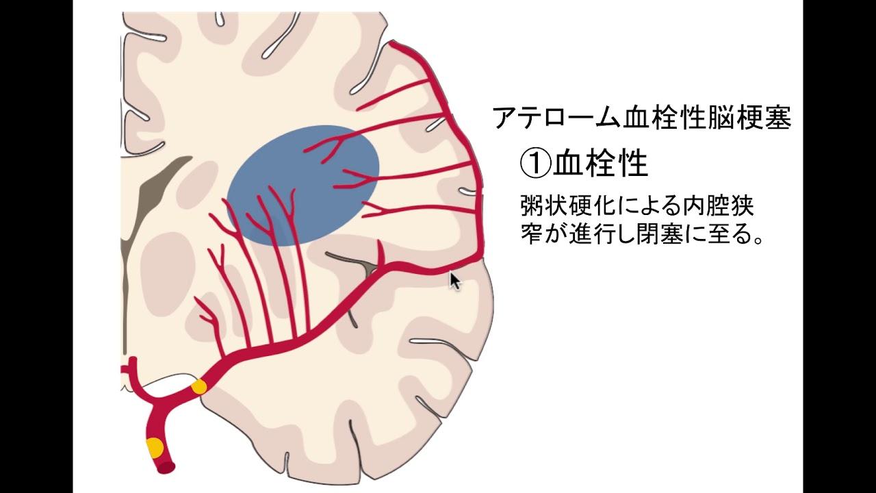 性 症 塞栓 心 原 脳
