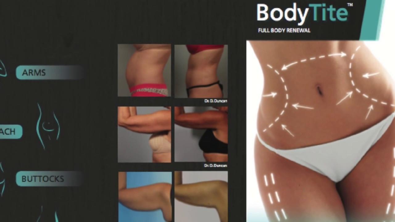 FaceTite & BodyTite at Luna Plastic Surgery