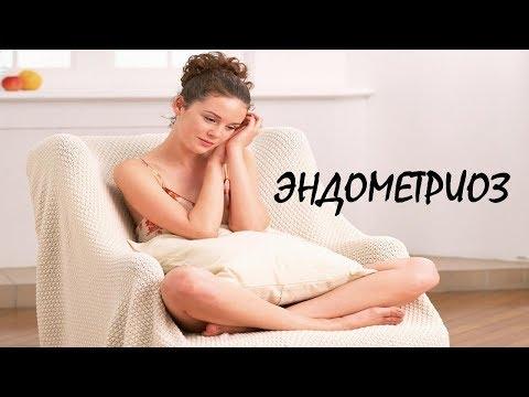 Эндометриоз с точки зрения психосоматики