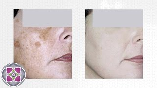 Laser Treatment to Get Rid of Dark Spots on Face
