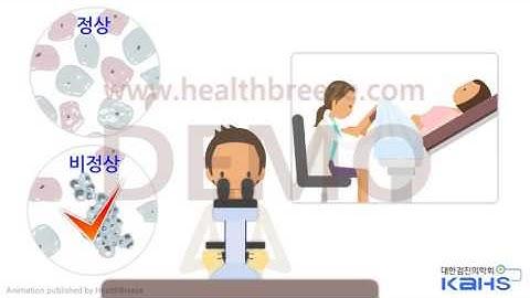 [시연용] b0251aako 대한검진의학회 자궁경부암검진자궁경부세포검사 결과 해설 암검진 유소견 설명