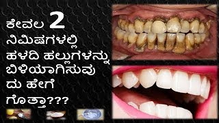 Teeth Whitening at Home in Kannada | Teeth Cleaning Kannada | Teeth in 2 Minutes Kannada