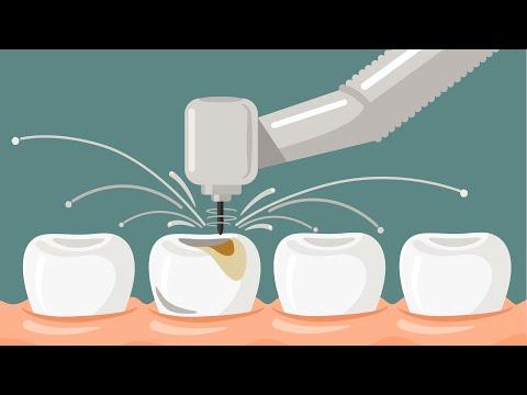 ฟันหักหรือฟันบิ่นจะทำไงดี