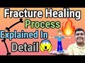 Fracture/Bone Healing Process Explained