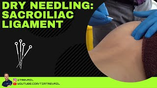 Dry Needling: Sacroiliac Ligament