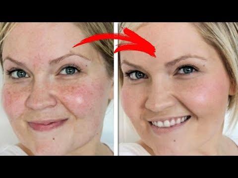 Советы по улучшению цвета лица. Как без тоналки добиться идеальной кожи.