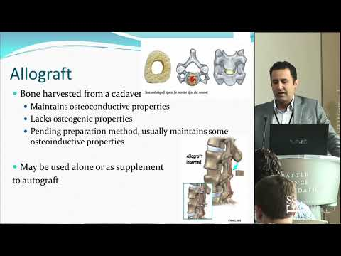 Bone Graft options in Spine Surgery - Noojan Kazemi, MD, FACS