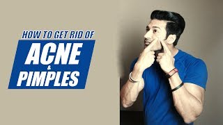How to get rid of ACNE & PIMPLES (Naturally) | Info by Guru Mann