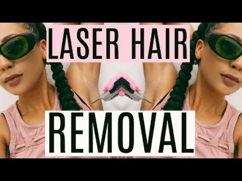 1 Year After Laser Hair Removal | Was It Worth It?