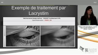 SFO 2019 - Lumière sur une nouvelle thérapie de la sécheresse oculaire