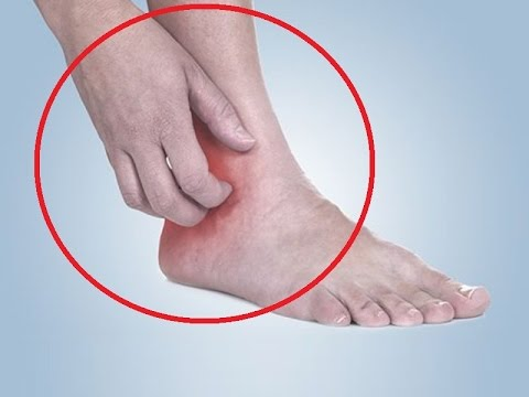 Leg ulcers treatment at home