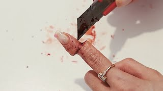 #9. 초등학생도 쉽게 따라할수 있는 손가락 베인 특수…