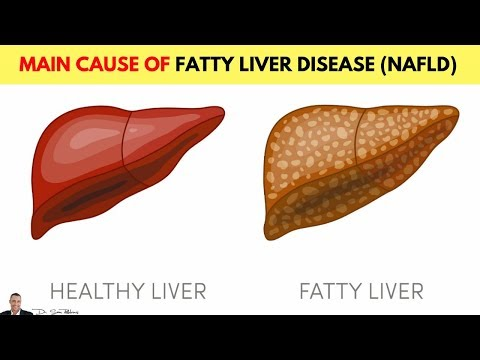 🍬 Main Cause Of Non-Alcoholic Fatty Liver Disease (NAFLD)