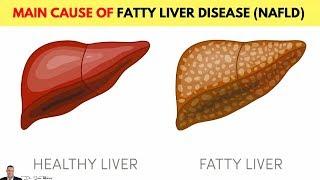 🍬 Main Cause Of Non-Alcoholic Fatty Liver Disease (NAFLD)