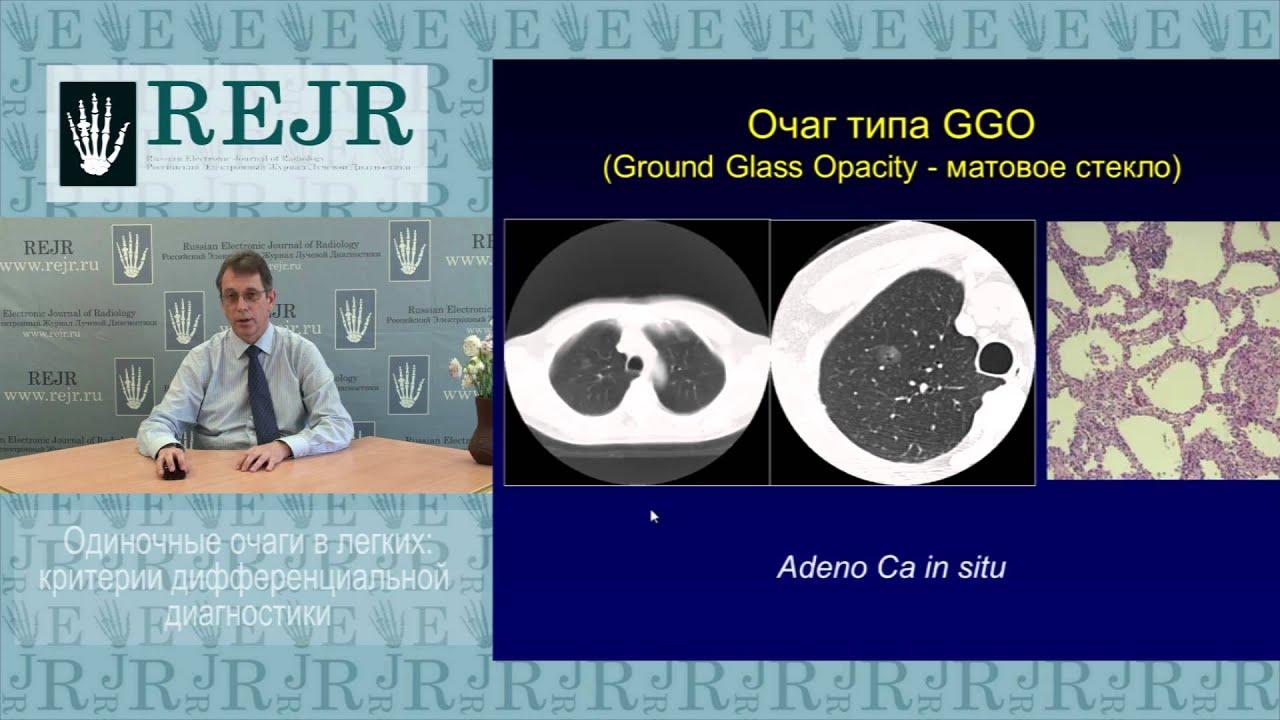 Одиночные очаги  в легких: критерии дифференциальной диагностики