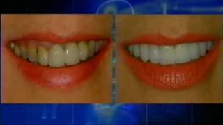 Captek Bridge - Charlotte Cosmetic Dentist Ross Nash, DDS - www.cdcotc.com Thumbnail