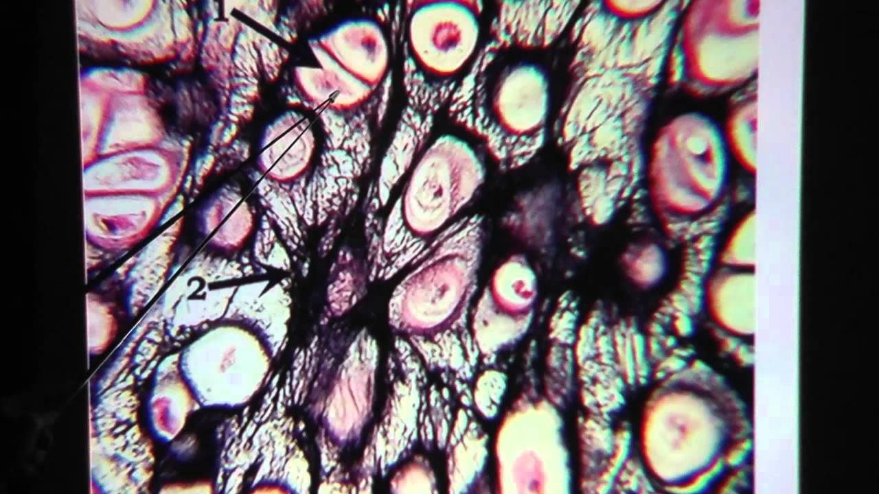 Elastic Cartilage Connective Tissue Youtube