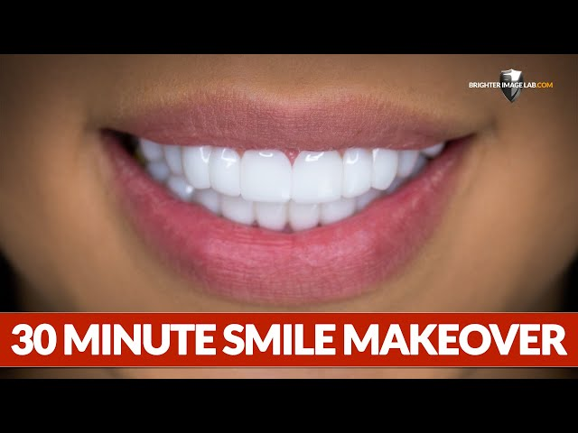 Dental Veneers - This Smile Makeover Took 30 Minutes by Brighter Image Lab!