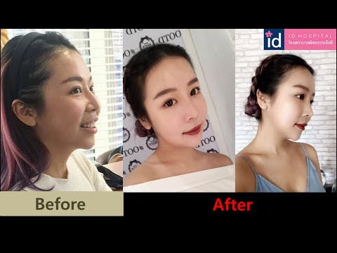[Trước và sau phẫu thuật thẩm mỹ Hàn Quốc] Hot blogger Malaysia thẩm mỹ tại Bệnh viện ID