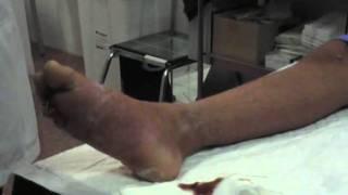 Después pie de lesión alfileres en y el agujas una