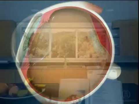 Лечение диабетической ретинопатии без операции: капли, таблетки, инъекции