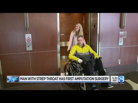 Man with strep throat has first amputation surgery
