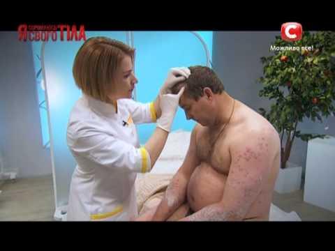 Герой из прошлого сезона Игорь Афанасьев - Я соромлюсь свого тіла