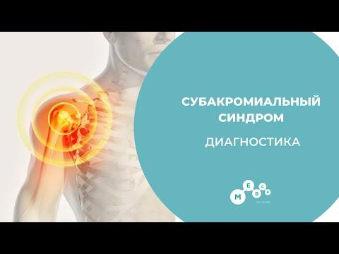 Субакромиальный синдром