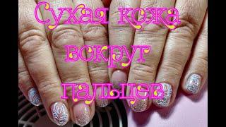 Сухая кожа вокруг пальцев Дизайн ногтей для полных рук
