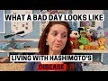HASHIMOTO'S THYROIDITIS Living with Autoimmune Disease