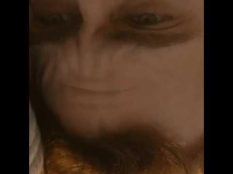 Download Sad Joaquin Forehead