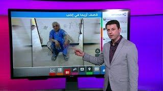 صورة طبيب أريحا تشعل مواقع التواصل بعد القصف على ريف إدلب