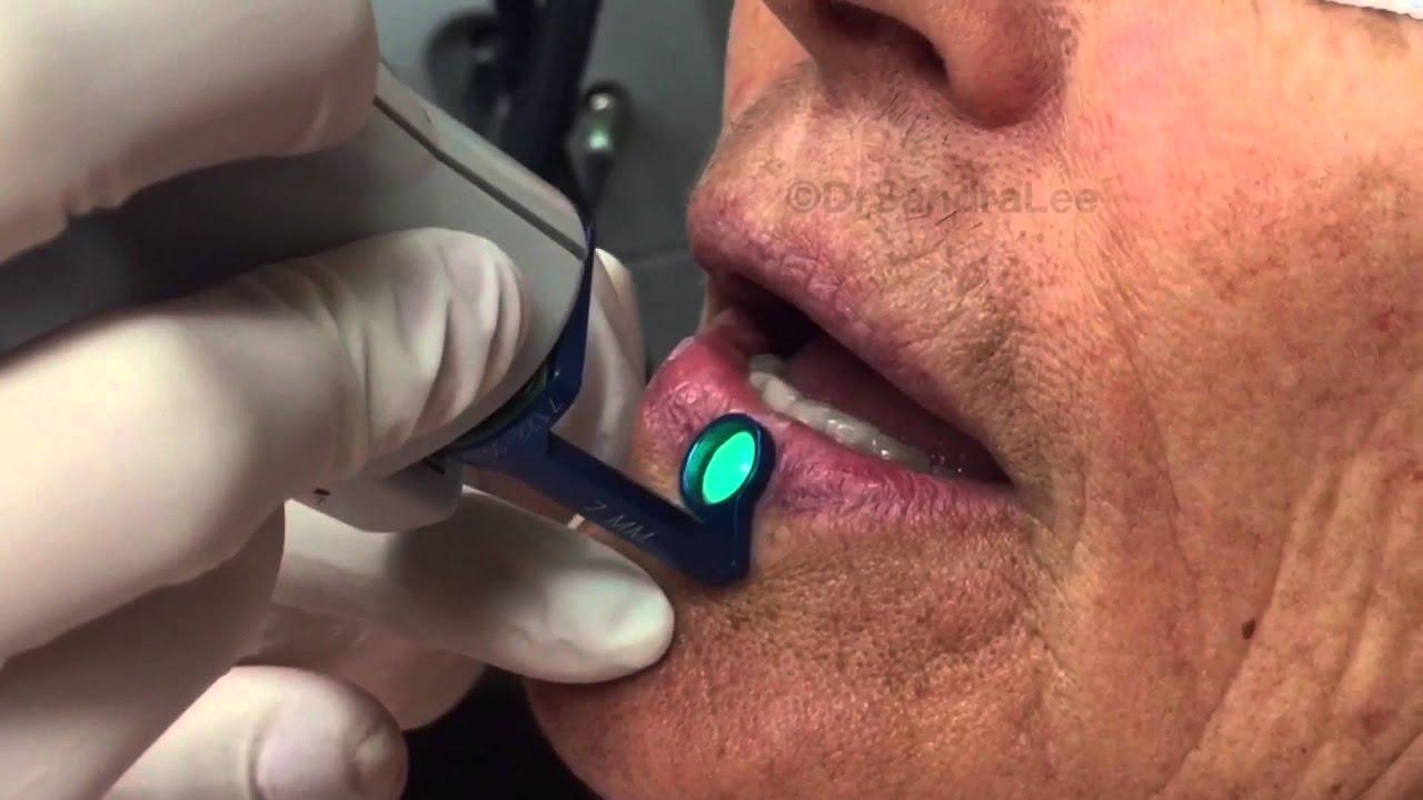 Flat warts, a venous lake, a blackhead, and a biopsy  For medical  education- NSFE