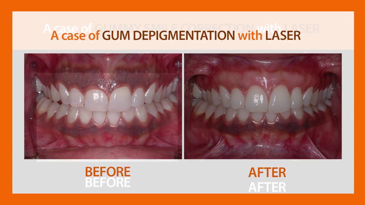 Best Laser Gum Treatment Fms Dental Hospital Flap Surgery In