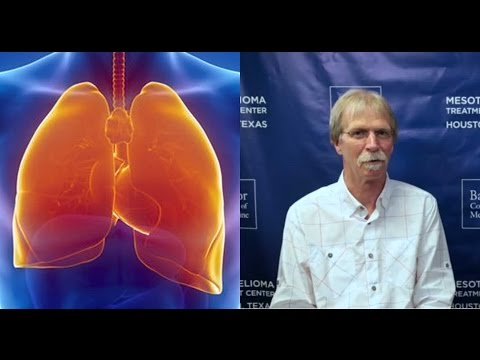 asbestos-exposure-lung-cancer-survivor-–-patrick-appert