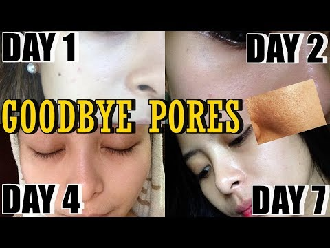 SOLUSYON SA PIMPLES, BUTLIG AT OPEN PORES?! (CLEAR SKIN AFTER 7 DAYS) | KATH MELENDEZ
