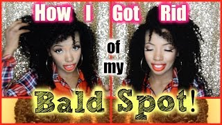 How I Got Rid of My Bald Spot! (before/after pics)