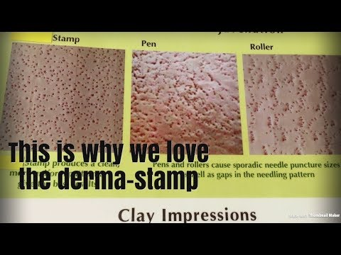 Derma-pen Derma-roller Derma-Stamp!!  HELP???    HELP!!!!!
