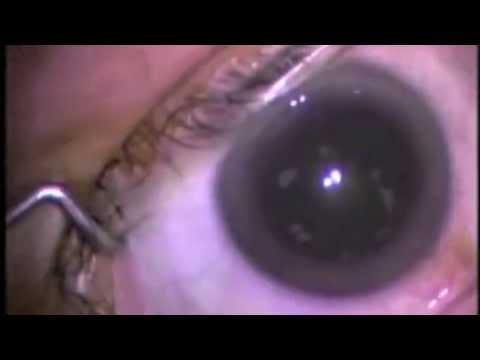 Blind (Short Film)
