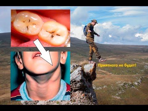 Может ли болеть лимфоузел из за зуба