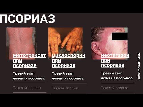 Псориаз. Лечение метотрексатом, циклоспорином А, неотигазоном (шаг 3)