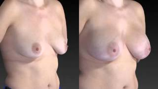 Breast Enhancement 3D Before and After-56