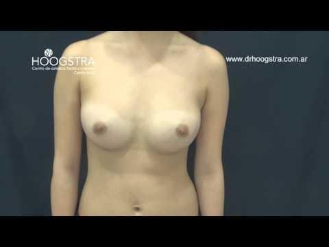 Colocación de prótesis mamarias (15108)