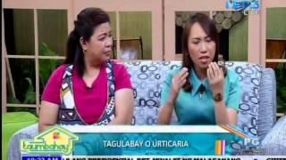 Taumbahay April 26, 2016  Dr  Ellaine Galvez Tagulabay o Urticaria