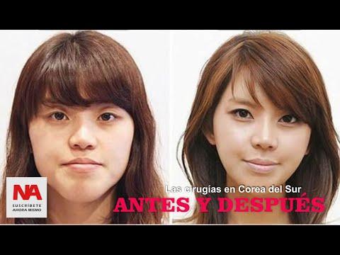 Cirugías plásticas en Corea del Sur un cambio realmente extremo