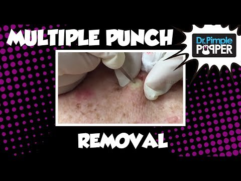 Multiple punch removals of Cysts on the Back & Blackhead Extractions